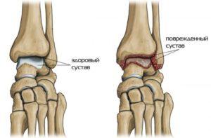 остеоартроз голеностопного сустава
