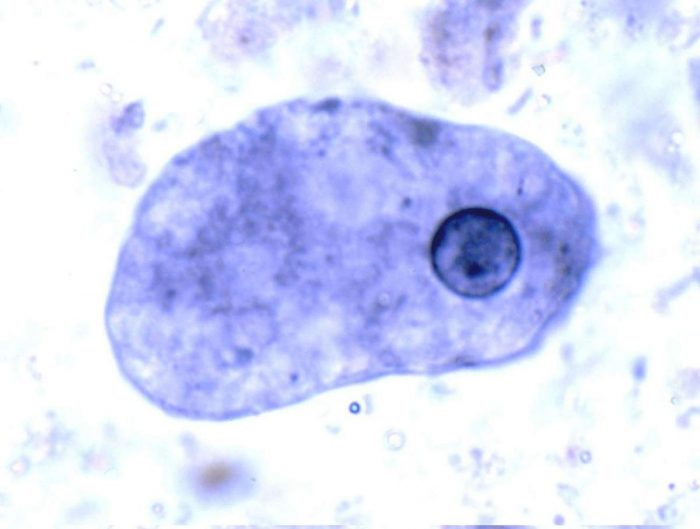 паразит Entamoeba histolytica
