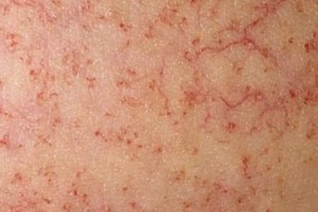 Венозная сеточка на коже
